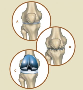 Facts worth knowing about the knee replacement surgery .jpg