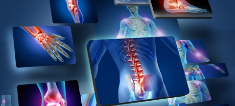 What is musculoskeletal physiotherapy and how can it help.jpg