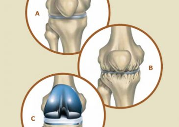 Facts Worth Knowing about the Knee Replacement Surgery