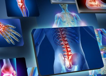 What is Musculoskeletal Physiotherapy and How Can it Help?